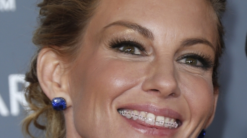 Faith Hill in Braces