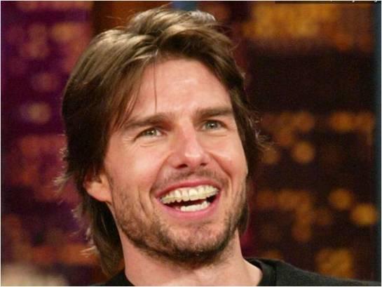 Tom Cruise's Braces